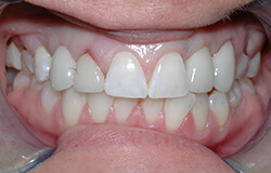 Closeup of smile following implant tooth replacement