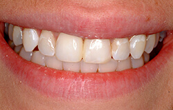 Smile after Diastema Repair in Marlton