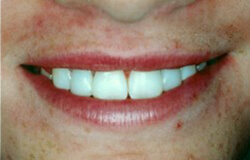 Closeup cosmetic dental bonding