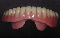 Lower denture on table