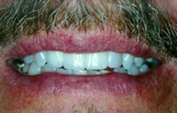 Smile after receiving dental implants in Marlton