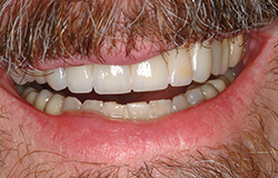 Smile after receiving adult orthodontics in Marlton