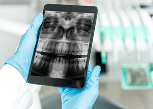 Dentist looking at x-ray on tablet