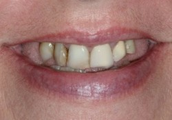 Closeup worn missing and decayed teeth