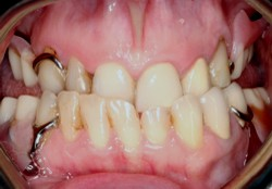Closeup of smile with partial denture