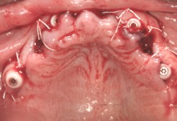 Closeup implant posts with gums sutured