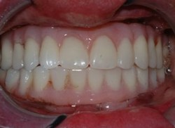 Closeup of teeth with All-on-4 denture