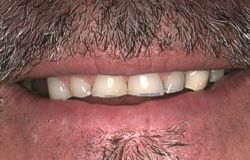 Closeup of severely worn teeth