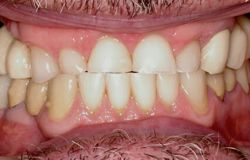 Closeup of worn teeth with collapsed bite