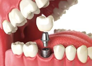 Dental implant in mouth