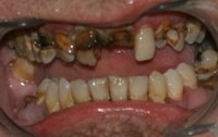 Closeup of smile with missing teeth and decay