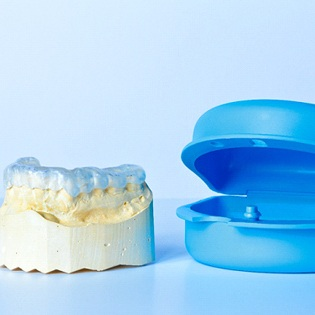 customized nightguard placed on a plaster dental mold