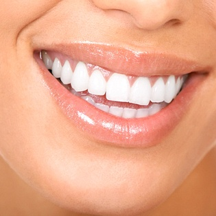 Close-up of woman's bright smile with healthy teeth