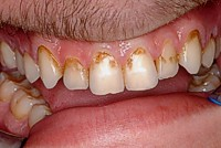 Closeup of teeth with staining yellow near gums