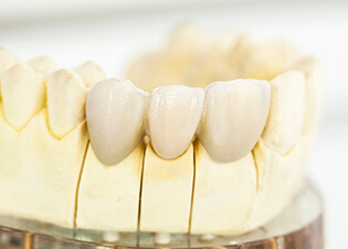 Dental model of fixed bridge restoration